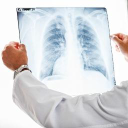 37% of Pulmonary Fibrosis Patients Treated with Ofev Maintained Lung Function, Presentation Showed